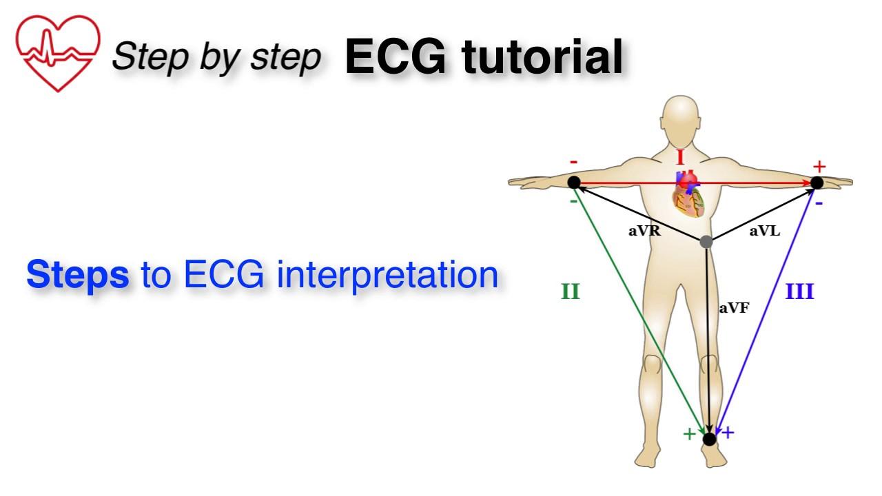 ECG 10: Brief Overview