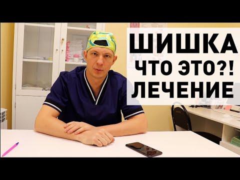 Геморрой болит шишка