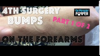 Lipoma excision on forearms, Session 4, Part 1 of 2