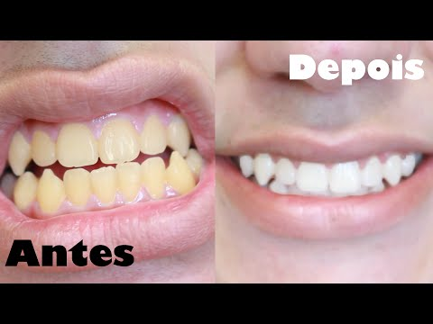 Como Clarear Os Dentes Em 1 Minuto Receita Caseira Youtube