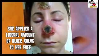 Big Blackheads Pimples Squeezed Blackhead Removal!! YouTube