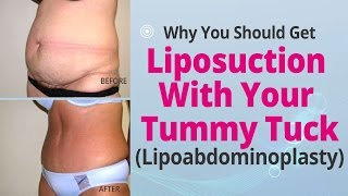 Why You Should Get Liposuction With Your Tummy Tuck (Lipoabdominoplasty) - Edelstein Cosmetic Thumbnail