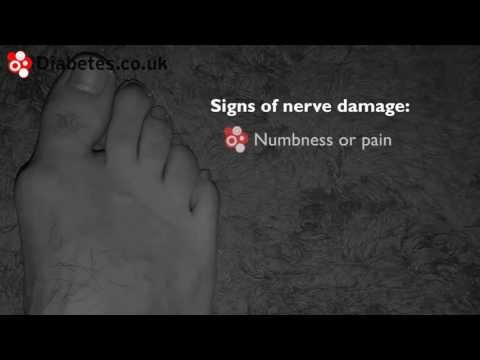 Checking Your Feet For Signs Of Nerve Damage