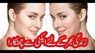 Acne Causes And Treatment in Urdu / Hindi | 100% Effective Ways to Remove Acne | Pimples ka ilaj