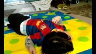 Lesch Nyhan Syndrome  Piero 1
