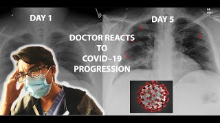 Doctor Reacts to COVID-19 Chest XRay Progression + CT