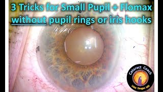3 tricks for small pupil + flomax cataract surgery without pupil rings or iris hooks