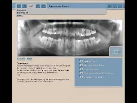 radiographic image analysis