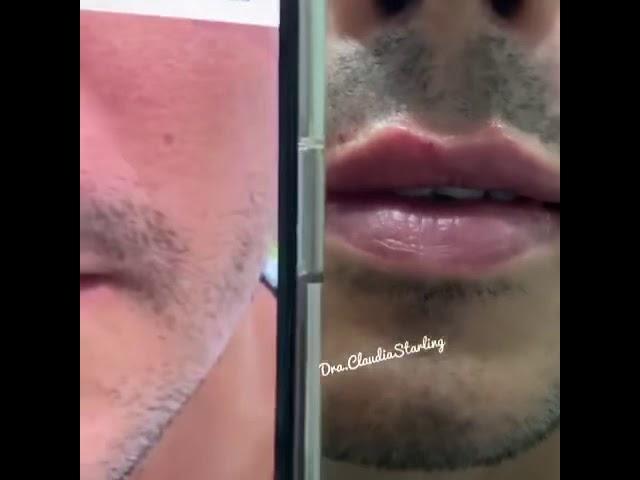 Preenchimento labial imediato