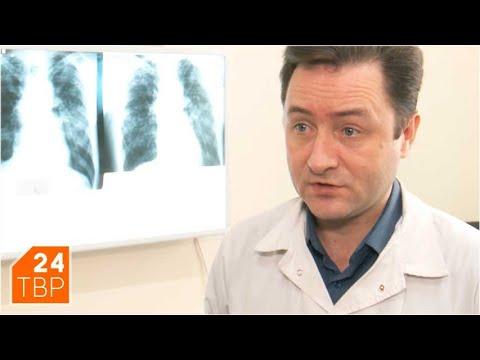 Николай Трошин: «Проверка на туберкулёз – бесплатная» | Новости | ТВР24 | Сергиев Посад