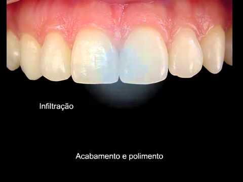 Dentista Troca De Restauracao Anterior Youtube
