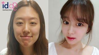 รีวิวศัลยกรรมเกาหลี: สาวที่อยากเป็นแอร์โฮสเตส เปลี่ยนได้ขนาดไหน!!