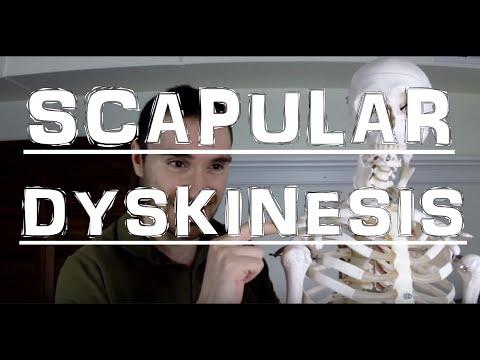 Scapular Dyskinesis: Shoulder Nightmare