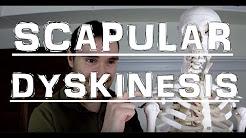 hqdefault - Scapular Dyskinesis Back Pain