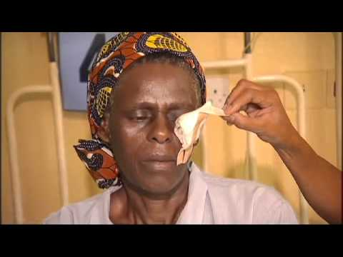 """Thumbnail for video """"10 millionth CBM-supported cataract operation"""""""