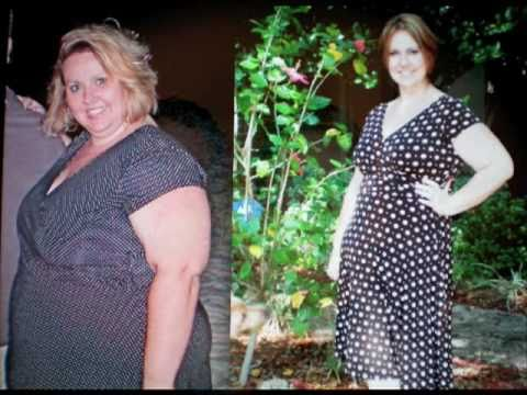 extreme-weight-loss,-no-surgery-!