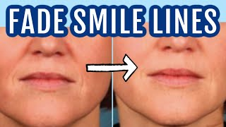 12 Ways To Fade Smile Lines (nasolabial Folds)| Dr Dray
