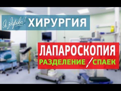 Лапароскопия. Разделение спаек