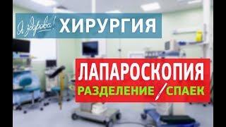 Лапароскопия  Разделение спаек(У пациентки 27 лет бесплодие в течение 5 лет. В анамнезе — хламидийная инфекция, перенесенная в 19 лет. При..., 2016-03-10T09:21:33.000Z)