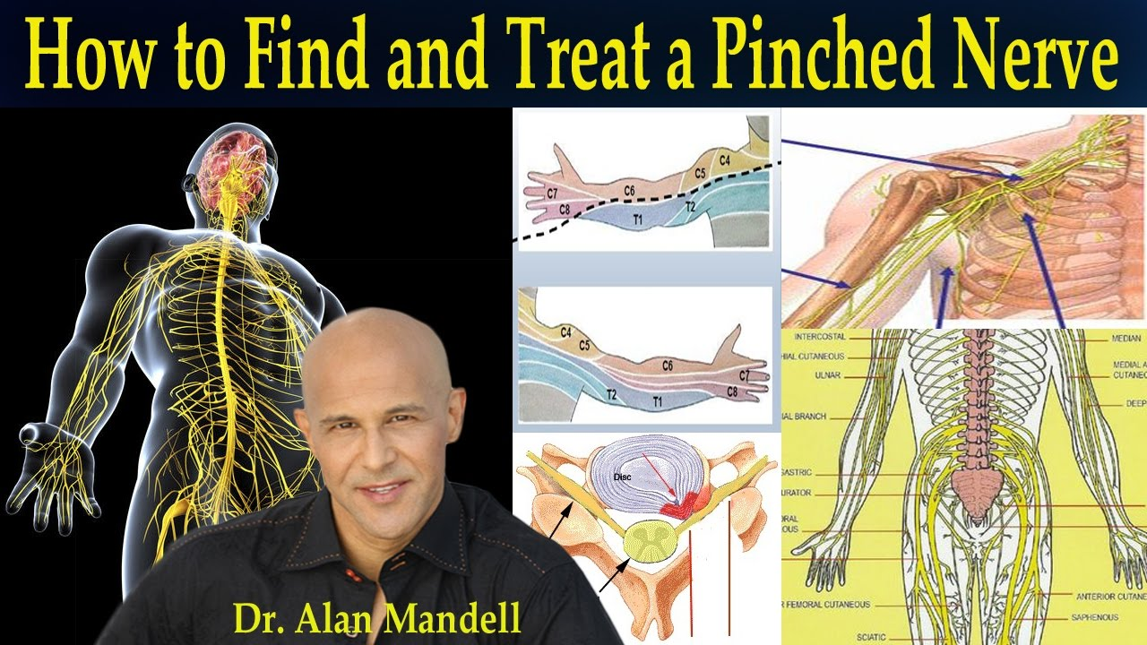 how to find and treat a pinched nerve (simple neurology) - dr