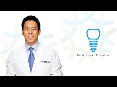 Dental Implant Procedure in Henderson NV: Dr. Huang | Henderson Oral Surgery & Dental Implant Center