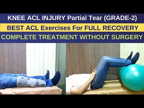 Treatment of ACL Injury Partial Tear-Grade 2, ACL Rehab Exercises Without Surgery- ACL RECOVERY