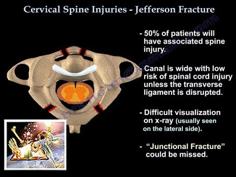 Jefferson Fracture - Everything You Need To Know - Dr. Nabil Ebraheim