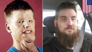 Full face transplant: Mitch Hunter lost face in crash that zapped him with 10,000 volts - TomoNews