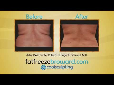 CoolSculpting - Non-Invasive Fat Removal Procedure - Skin Center - Roger H. Stewart, MD