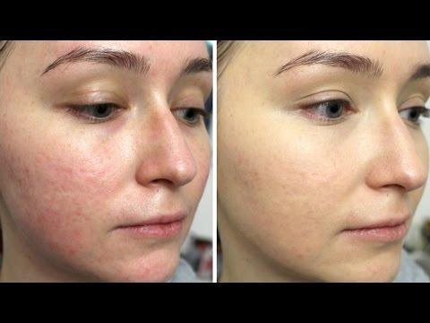 Покраснения на лице: причины, методы лечения красноты