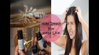 Simple 5 Minute Home Remedy To Get Rid Of Head Lice/जूँ और लीख हटाने के घरेलू उपाए/Prerna Jha