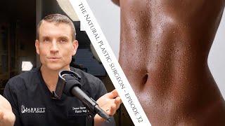 kali ini kita belajar tentang operasi sedot lemak atau transfer lemak, operasi ini cenderung paling .