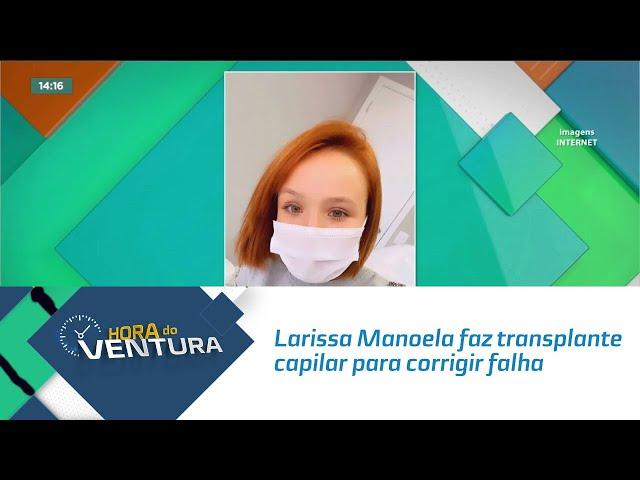 Larissa Manoela faz transplante capilar para corrigir falha no couro cabeludo