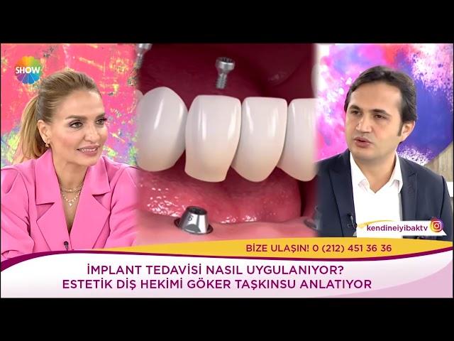 Show TV - Ebru Akel - İmplant tedavisi nasıl uygulanıyor?
