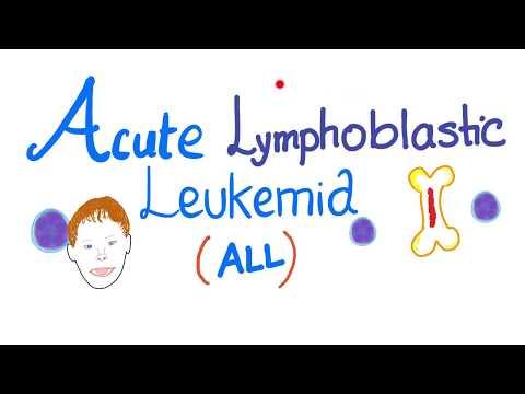 Acute Lymphoblastic Leukemia (ALL)   Down Syndrome   TDt Positive