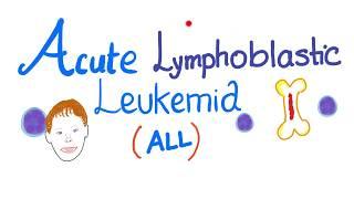 Acute Lymphoblastic Leukemia (ALL)