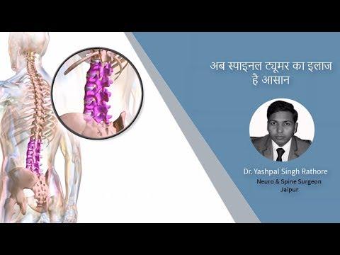 अब स्पाइनल ट्यूमर का इलाज है आसान - Spinal Tumors – Symptoms , Diagnosis