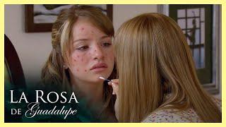La Rosa de Guadalupe: Ana tiene problemas severos con el acné   Cutis de diez