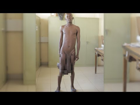 Sein Penis 90 Zentimeter lang, seine Hoden 5 Kilo schwer - Ärzte operieren Riesen Genitalien!из YouTube · Длительность: 1 мин4 с