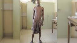 Sein Penis 90 Zentimeter lang, seine Hoden 5 Kilo schwer - Ärzte operieren Riesen Genitalien!