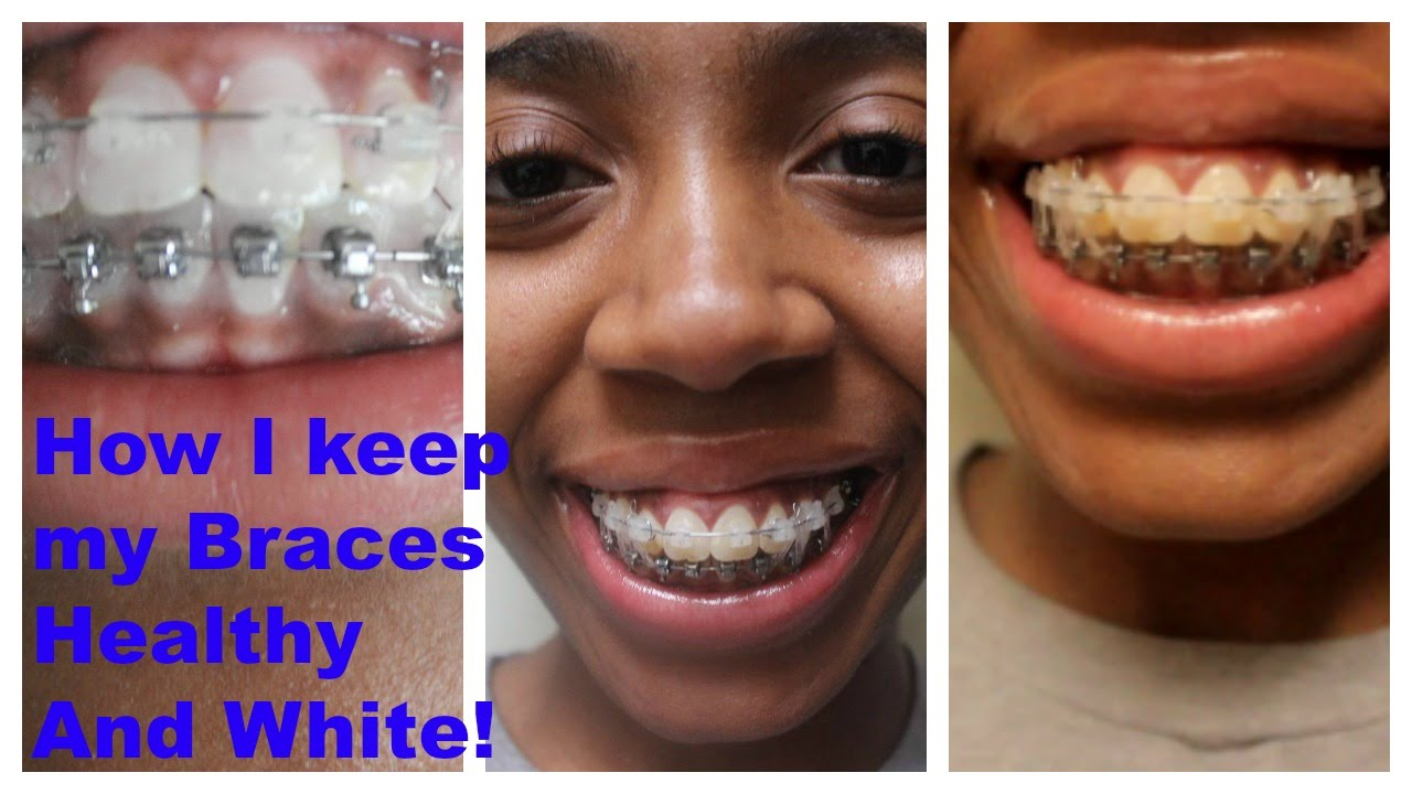 How to keep teeth white when you have braces