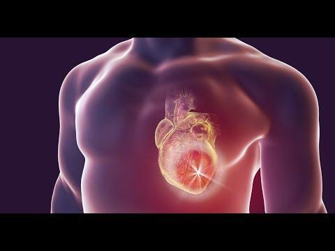 Video Infarto: saiba como acontece um ataque cardíaco, por Minha Vida