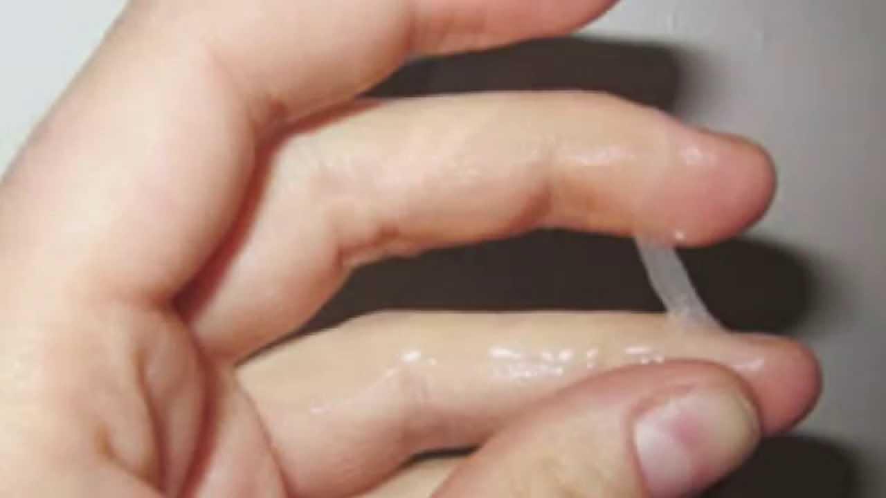 6 tipos de infecciones vaginales o vaginitis