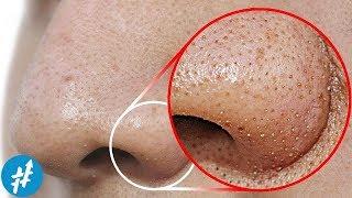 KOMEDO HITAM Di Hidung? Lakuin Hal Ini Untuk Membersihkannya Secara Cepat & Alami