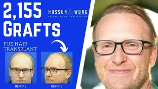 FUE HAIR TRANSPLANT 2155 GRAFTS | HASSON AND WONG TESTIMONIAL