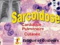 Sarcoidose pulmonaire articulaire renale hepatique cutanée ophtalmologique