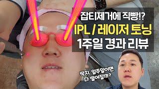 기미, 잡티제거 IPL 레이저토닝 시술 1주일 경과 후…