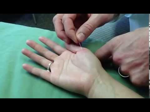 Acupuncture master subjects in college begin with a 4 or 5
