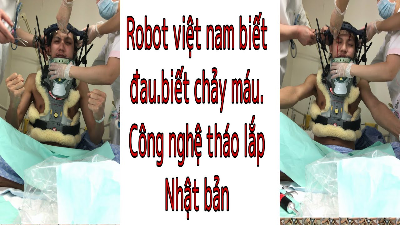 Tháo ốc trên đầu một robot biết đau.người việt công nghệ nhật bản