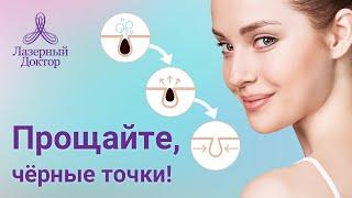 Ультразвуковая чистка лица: процедура от и до